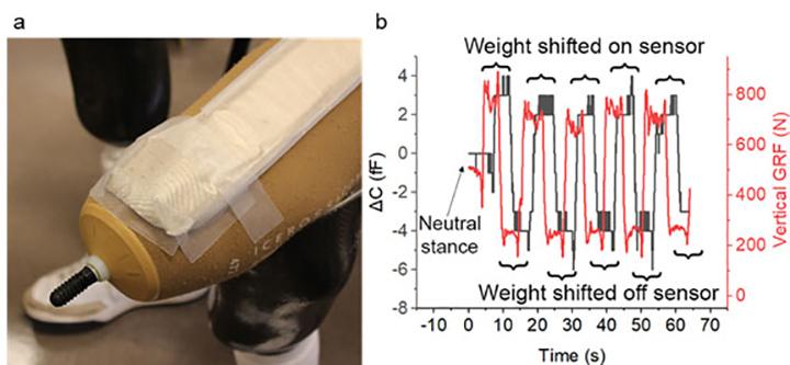 Sewn fabric sensor placed on amputee's residual limb
